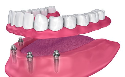 Animated model of implant retained dental crown
