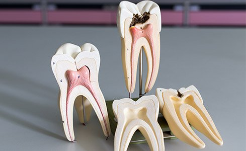 Models of healthy and unhealthy teeth