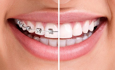 Teeth with traditional braces and teeth without