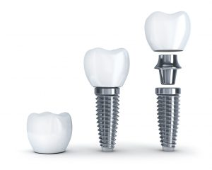 Dental Implants in Long Island City preserve jaw bone integrity.