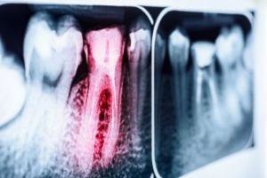 X-ray showing an infected tooth