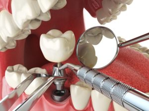 dental implant abutment and tools