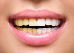 Discolored smile before and after visiting Long Island City dentist
