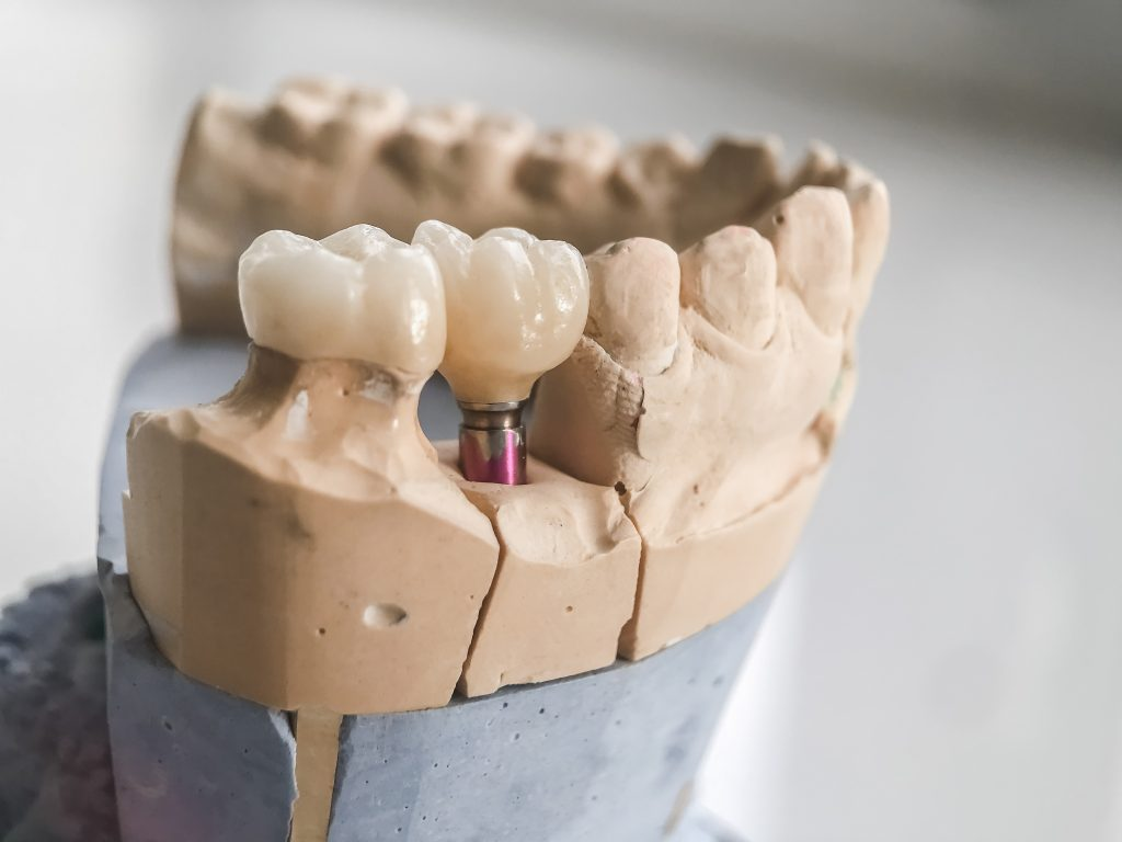 Dental implant and crown in model of lower jaw